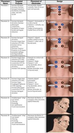 Speech therapy swallowing exercises po trials data sheet for Oral motor exercises for dysphagia