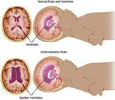 Diagnosis: Hydrocephalus