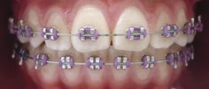 – Dt, Do you understand there ar U. Braces Smile, Kids Braces, Dental Braces, Teeth Braces, Braces Bands, Braces Tips, Braces And Glasses, Cute Braces Colors, Lingual Braces