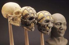 facial-bone-reconstruction1