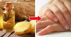 Tratament pentru unghii puternice. Il poti prepara la tine acasa Peta, Avocado, Fruit, Grande, Sport, Avocado Oil, Shea Butter, Lime Essential Oil, Growing Nails