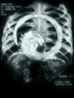 The kind of X-ray you don't want to see.