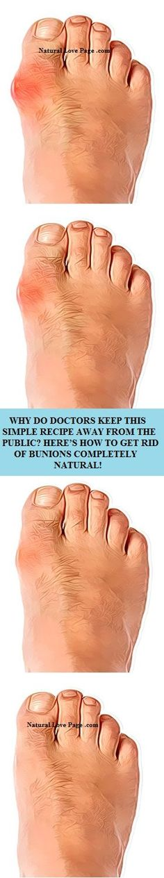 Bunions are most likely normal among many individuals. They are really salt stores, additionally, angina, flu, gout, terrible digestion, rheumatic contaminations, less than stellar eating routine and long wearing awkward shoes add to their development. In this article, we've chosen to present you how to dispose of bunions totally actually!