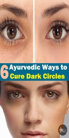 If you are looking for the ways to heal the dark circles under your eyes then Ayurveda has answers to this dark circle problem. There are several Ayurvedic cures for dark circles that can be Dark Circle Cream, Eye Cream For Dark Circles, Dark Circles Under Eyes, Eye Circles, Ayurveda, Cystic Acne Remedies, Scar Remedies, Natural Remedies, Winter Beauty Tips