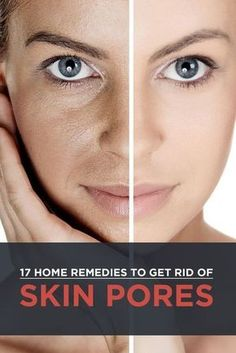 Natural Skin Remedies 17 Effective Home Remedies For Skin Pores - Skin pores are like small pits on the face that appear like an orange peel—not an attractive image! Know how to get rid of open pores on skin permanently by reading this post Skin Tips, Skin Care Tips, Beauty Care, Beauty Skin, Diy Beauty, Home Remedies For Skin, Natural Remedies, Beauty Hacks For Teens, Sagging Skin