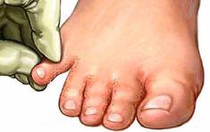 Na plíseň na nohou nejlépe funguje jedlá soda a obyčejný jogurt Toenail Fungus Remedies, Toenail Fungus Treatment, Infection Fongique, Laser Eye Surgery Cost, Toe Fungus, Health Education, Natural Remedies, Loosing Weight
