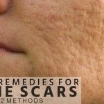 Acne scar occur when someone's pop your pimples and spots become inflamed. For some peoples scars depend on skin tone or hereditary. There a