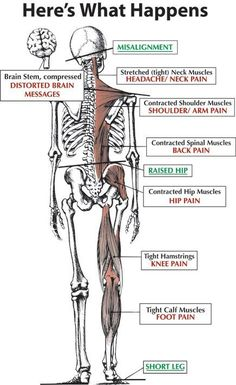 About Atlas Orthogonal Chiropractic Atlas Orthogonal Chiropractic - Dr. Mark Van Doren D. Hip Pain, Foot Pain, Neck Pain, Shoulder Muscles, Calf Muscles, Psoas Muscle, Muscle Pain, Upper Cervical Chiropractic, Psoas Release