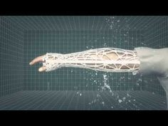 3D Printed Orthopedic Casts - no more smelly plaster casts!