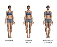Looking for a Permanent Remedy for Bow Legs - Without the Need for Surgery? Read on to discover exactly what you need to do to fix your bow legs once and for all, and enjoy perfectly straight and attractive legs for the rest of your life! Knock Knees Correction, Bow Legged Correction, Posture Correction, Knee Exercises, Knee Surgery, Leg Stretching, Yoga, Weight Loss Program, Curly Hair