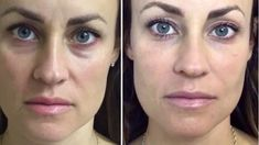 Dermal filler Restylane Lyft and Classic Restylane. After photos taken one week later with NO photoshop! Asia Hankins RN Queen of Liquid . Under Eye Creases, Under Eye Puffiness, Botox Fillers, Dermal Fillers, Facial Fillers, Eye Dermal, Liquid Facelift, Exercises, Sweetie Belle