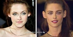 Velebrity Kristen Stewart before and after plastic surgery nose job rhinoplasty. Twighlight celeb nosejob images before and after plastic surgery. www.drgregpark.com