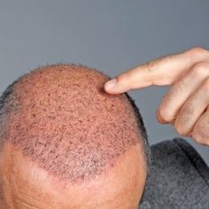 Yashi Clinic is the best hair transplant clinic in Thane, Mumbai. We offer the proven hair transplant. Know more about FUE Hair Transplant cost in India! Hair Transplant Cost, Hair Transplant Surgery, Mustard Oil For Hair, Reverse Hair Loss, Regrow Hair, Les Rides, Hair Loss Remedies, Hair Growth Oil, Hair Restoration
