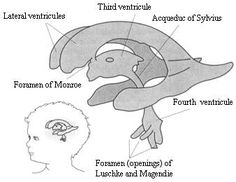 Illustration of ventricles in a Pediatric patient