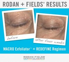 Clinical Results: 100% of participants in an independent clinical trial experienced an improvement in skin texture after four uses of the REDEFINE MACRO Exfoliator™, when used in combination with the REDEFINE Regimen. Check out this incredible before & after photo from one of the participants. Notice how much brighter and more luminous her complexion is in the after photo.  Repin to share these results with your followers. #RodanandFields #RFMACROE