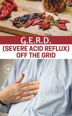 G.E.R.D. (Severe Acid Reflux) Off The Grid - Health conditions won't just go away because we are faced with other challenges. You could reach very real limits and these limits could cost you your life. This article does a great job at addressing the causes and some natural remedies for dealing with an off the grid case of GERD. Natural Remedies For Gerd, Natural Remedies For Heartburn, Herbal Remedies, Pineapple Health Benefits, How To Relieve Heartburn, Stop Acid Reflux, Acid Reflux Remedies, Heath And Fitness, Natural Remedies