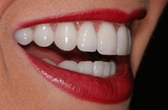 Porcelain veneers, the benefits to your smile, costs, prices, financing, risks & side effects, and the lifespan of the veneers after the treatment.