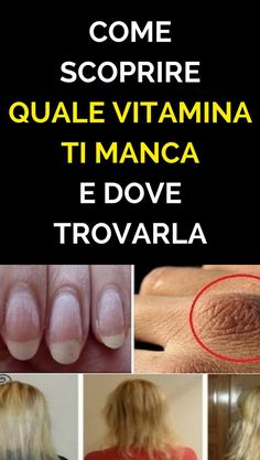 Come Scoprire Quale Vitamina Ti Manca (e Dove Trovarla)