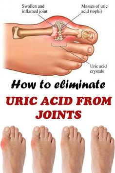 How to eliminate uric acid from joints:  Juice together:  1 cucumber 2 pieces celery 1 slick of lemon 1 cm ginger root