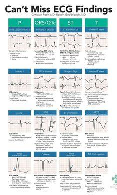 Can't Miss ECG Findings Cards for the Emergency Medicine Provider – StudyPK – Trend Medical Cardiac Nursing, Nursing Mnemonics, Nursing Degree, Nursing School Notes, Nursing Schools, Medical School, Medical Students, Nursing Students, Critical Care Nursing