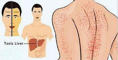 15 Sinais De Que Seu Fígado Está Doente - E Como Resolver O Problema Naturalmente