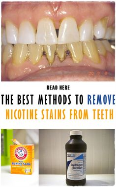 The best methods to remove nicotine stains from teeth