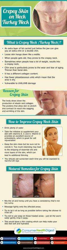 Crepey Skin on Neck