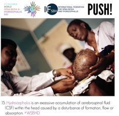 Hydrocephalus is an excessive accumulation of cerebrospinal fluid (CSF) within the head caused by a disturbance of formation, flow or absorption. Cerebrospinal Fluid, Global Awareness, Did You Know, Knowing You, Flow