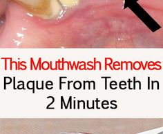 This is how to prepare this mouthwash. You will need: 1 tablespoon baking soda ½ teaspoon of salt ½