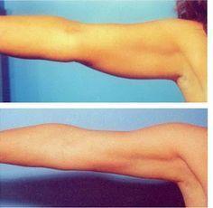 formas de adelgazar los brazos