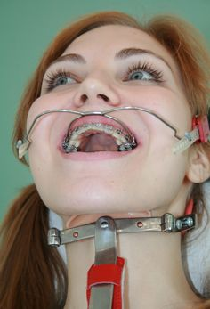 Women braces teeth bondage