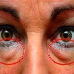 Μαθετε τις καλυτερες φυσικες θεραπειες για να εξαφανισετε τους μαυρους κυκλους και τις σακουλες κατω απο τα ματια.