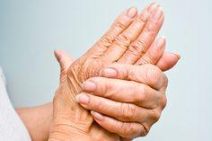 What Do You Know About Psoriatic Arthritis? | WebMD Exercise For Rheumatoid Arthritis, Natural Remedies For Arthritis, Rheumatoid Arthritis Treatment, Knee Arthritis, Rheumatoid Arthritis Symptoms, Arthritis Society, Medical Prescription, Alternative Medicine, Sleep Apnea