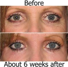 It Works before and after lip and eye cream!! Look at that!? ---> www.lifeinbalance.no or visit https://www.facebook.com/pages/It-Works-by-Stella/817559468337070?ref=tn_tnmn