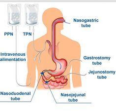Enteral and Parenteral Nutrition | Total Parental Nutrition Diagram
