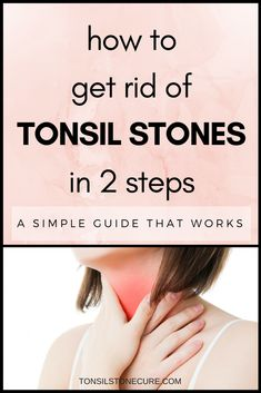 Getting rid of tonsil stones may seem like a difficult task, but it's really not! If you're tired of dealing with tonsil stones, check out this simple, solution. Tonsilitis Remedy, Chronic Sore Throat, Chronic Bad Breath, Tonsil Stones, Family Doctors, 2 Step, Oral Hygiene, Natural Home Remedies, How To Get Rid
