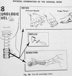 spinal dermatomes
