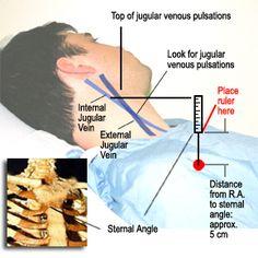 Measuring JVP (Jugular Venous Pressure) UOHI Cardiac Assessment Tutorial Nursing Pins, Icu Nursing, Pa School, Medical School, Cardiac Assessment, Pa Life, Cardiology, Nurse Practitioner, Wine