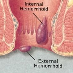 Candid Tips And Advice For Dealing With Hemmorhoids