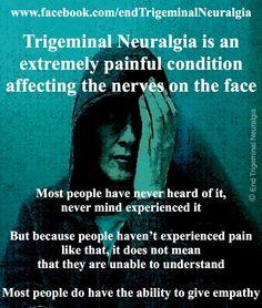 www.facebook.com/endTrigeminalNeuralgia Chronic Illness, Chronic Pain, Fibromyalgia, Hemiplegic Migraine, Migraine Pain, Cluster Headaches, Trigeminal Neuralgia, Sensory Processing Disorder, Spectrum Disorder