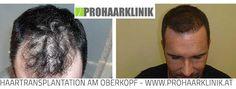 Haartransplantation, Haarimplantation