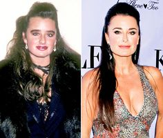 The Real Housewives and all their plastic surgery before and after.  Kyle Richards had successful rhinoplasty with a nice thinning and straightening of her dorsum and refinement of the tip.