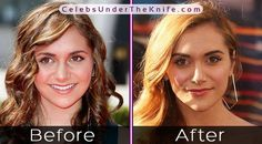 Alyson Stoner's Crazy Nose Job - Before + After Photos. Check out the pics for yourself and we'll let you decide whether they've had plastic surgery or not! Plastic Surgery Photos, Celebrity Plastic Surgery, Plastic Surgery Before After, Alyson Stoner, Rhinoplasty Before And After, Under The Knife, Before After Photo, Cosmetic Procedures, Medical Problems