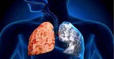 Συνταγή που καθαρίζει τους πνεύμονες από φλέγμα, τοξίνες και φλεγμονές!