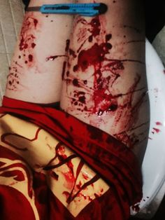 Blood basically everywhere. London sighed and started to clean up the mess. She stood up only to fall to her knees as she let out a frustrated groan