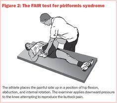 Piriformis Syndrome Home Treatment | Diseases Treatment: Piriformis Syndrome Treatment