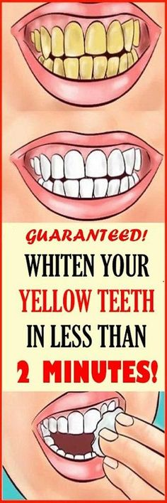Whiten Your Yellow Teeth In Less Than 2 Minutes! Whiten Your Yellow Teeth In Less Than 2 Minutes! Whiten Your Yellow Teeth In Less Than 2 Minutes! Teeth Whitening Remedies, Natural Teeth Whitening, Whitening Kit, White Teeth Remedies, Health Tips For Women, Health And Beauty Tips, Health Advice, Women Health, Teeth Health