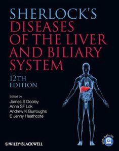 Free medical books hutchisons clinical methods 23rd editionpdf sherlocks diseases of the liver and biliary system may free medical books fandeluxe Choice Image