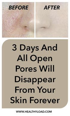 Pores are small openings in the skin which allow it to breathe. They are almost impossible to be seen with the naked eye but may grow in size as we get older. Enlarged pores look really unpleasant and can ruin your appearance, which is why everyone wants to resolve the problem as soon as they …