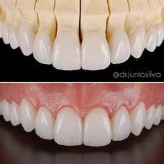Crown on the lab model and in the mouth Dentist Reviews, Dental Photos, Dental Videos, Dental Anatomy, Veneers Teeth, Dental Technician, Teeth Shape, Dental Art